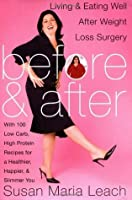 Before & After: Living & Eating Well After Weight Loss Surgery
