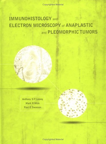 Immunohistology And Electron Microscopy Of Anaplastic And Pleomorphic Tumors  by  Anthony S.Y. Leong