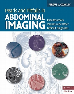 Pearls and Pitfalls in Abdominal Imaging: Pseudotumors, Variants and Other Difficult Diagnoses  by  Fergus V. Coakley