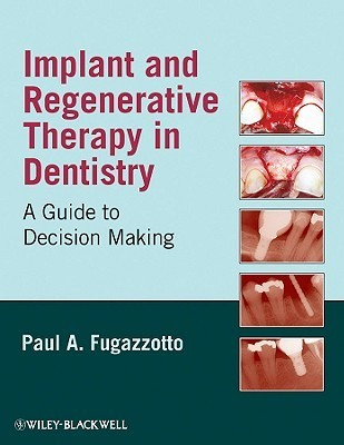 Implant and Regenerative Therapy in Dentistry: A Guide to Decision Making  by  Paul A. Fugazzotto
