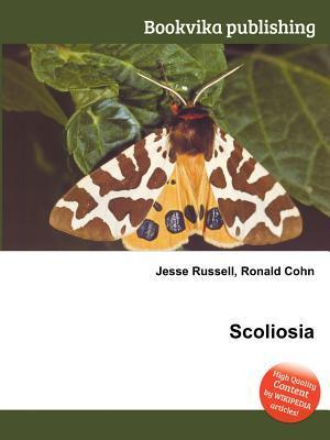 Scoliosia  by  Jesse Russell