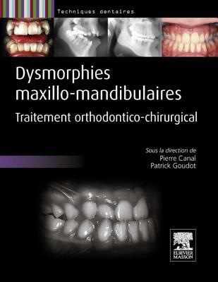 Dysmorphies Maxillo-Mandibulaires: Traitement Orthodontico-Chirurgical  by  Pierre Canal