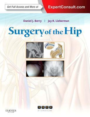 Surgery of the Hip: Expert Consult - Online and Print  by  Daniel J. Berry
