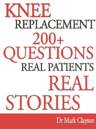 Knee Replacement - 200+ Questions (Knee Replacement Support Series)  by  Mark Clayson
