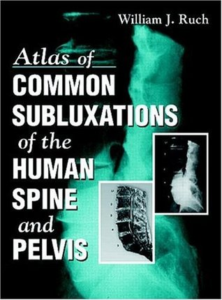 Atlas of Common Subluxations of the Human Spine and Pelvis  by  William J. Ruch