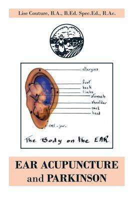 Ear Acupuncture and Parkinson  by  Lise Couture