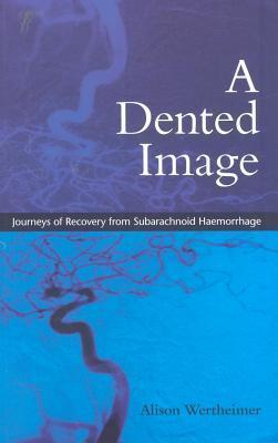 A Dented Image: Journeys of Recovery from Subarachnoid Haemorrhage Alison Wertheimer