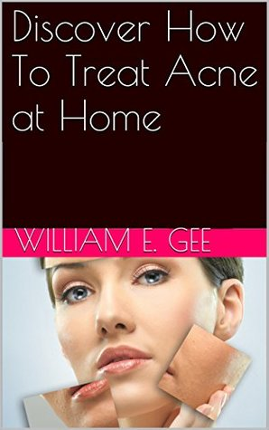 Discover How To Treat Acne at Home William E. Gee