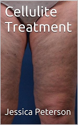 Cellulite Treatment  by  Jessica Peterson