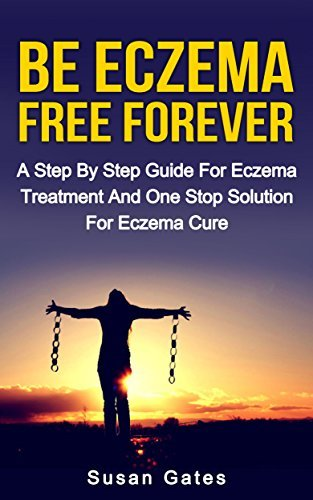 Be Eczema Free Forever: A Step By Step Guide For Eczema Treatment And A One Stop Solution For Eczema Cure  by  Susan Gates