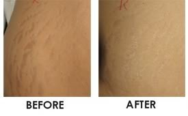 Stretch marks Pictures, Images and Photos