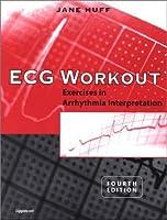 Ecg Workout Exercises In Arrhythmia Interpretation Pdf