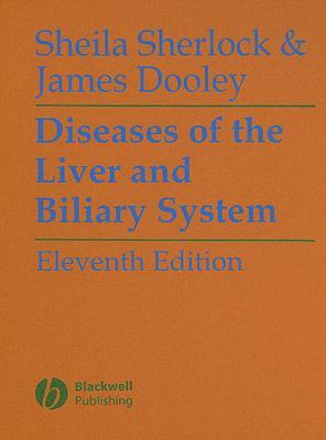 Diseases Of The Liver And Biliary System