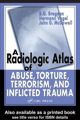 A Radiologic Atlas Of Abuse, Torture, Terrorism, And Inflicted B.G. Brogdon
