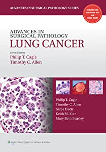 Advances in Surgical Pathology: Lung Cancer