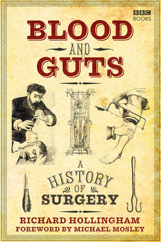 Blood and Guts A History of Surgery