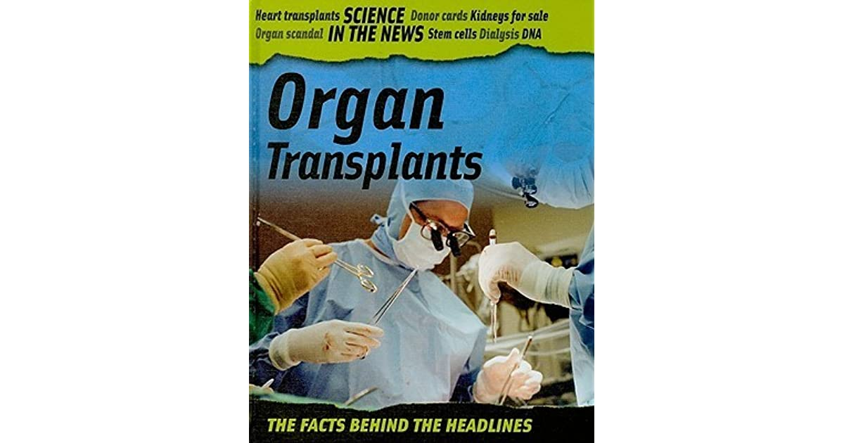 organ transplant and organ donor card Webmd weighs the pros when you fill out an organ donor card with your hospital costs related to a living organ donation the transplant program can go over.