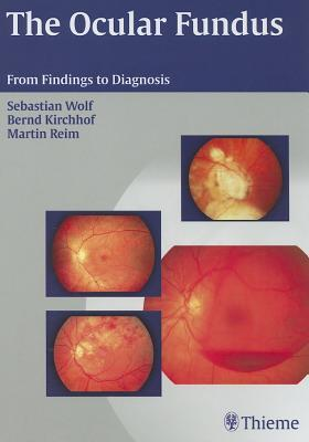 The Ocular Fundus: From Findings to Diagnosis