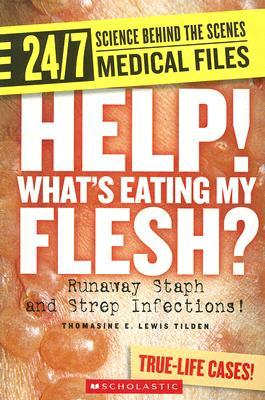 Help! What's Eating My Flesh?: Runaway Staph and Strep Infections!