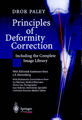 principles deformity correction dror paley