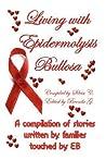 Living with Epidermolysis Bullosa