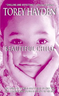 Given Virol from birth: the world's most beautiful child