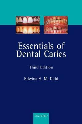 Essentials-of-Dental-Caries-The-Disease-and-Its-Management