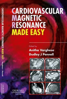 Cardiovascular Magnetic Resonance Made Easy E-Book
