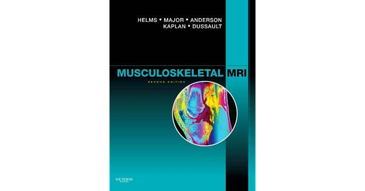 Musculoskeletal MRI by Clyde A. Helms