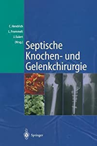 Septische Knochen-Und Gelenkchirurgie