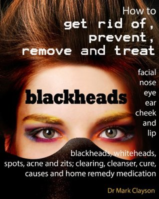 Blackheads: How to get rid of, prevent, remove and treat