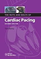The Nuts and Bolts of Cardiac Pacing (Nuts and Bolts Series)