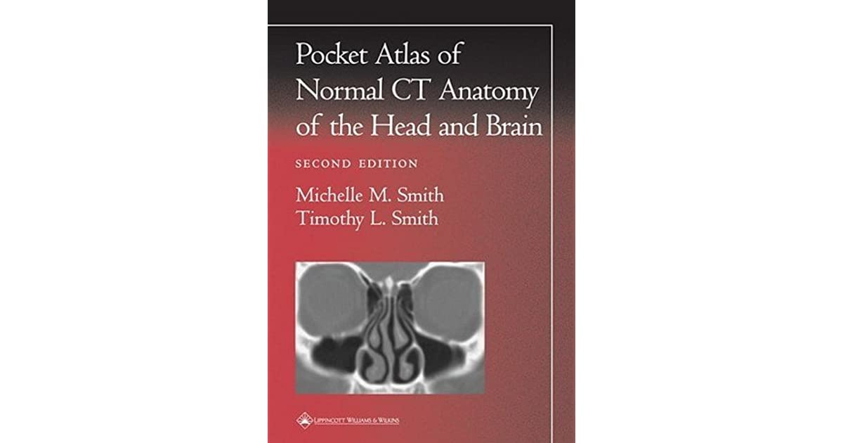 Pocket Atlas of Normal CT Anatomy of the Head and Brain by Michelle ...