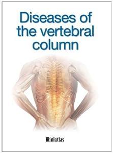 Diseases of the vertebral column Miniatlas