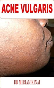 Dermatology: Acne Vulgaris