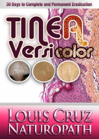 Tinea Versicolor - 30 Days to Complete Elimination Louis Cruz