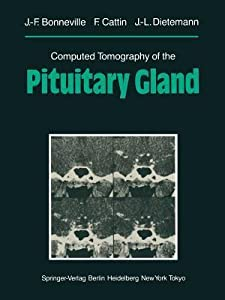 Computed Tomography of the Pituitary Gland: With a Chapter on Magnetic Resonance Imaging of the Sellar and Juxtasellar Region, by M. Mu Huo Teng and K. Sartor