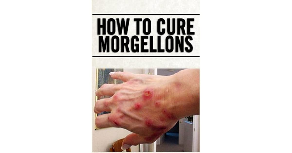 How To Cure Morgellons by Michael Chapala