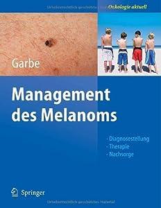 Management des Melanoms