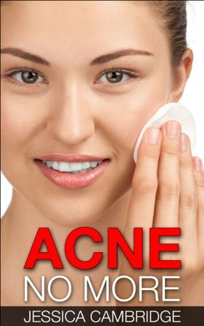 Acne No More: The Secret Of Living An Acne Free Life, A Guide To Acne Treatment, Acne Cure, Acne Remedies And Acne Diet For Perfect Clear Skin (Acne Cure, ... Care, Acne Free, Guide To Acne Free Skin) Jessica Cambridge
