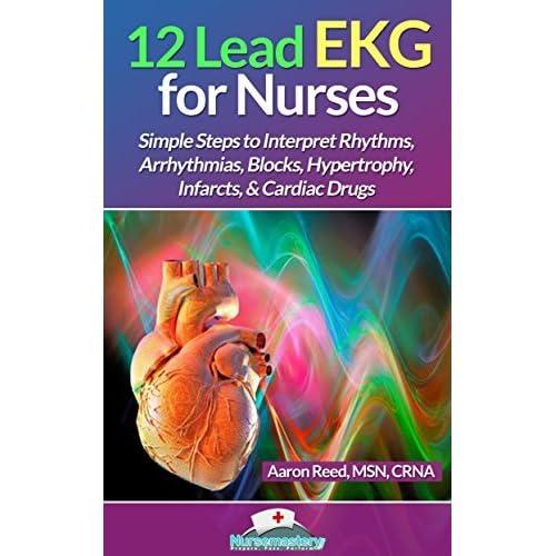 12 Lead EKG for Nurses: Simple Steps to Interpret Rhythms