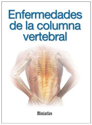 Miniatlas Enfermedades de la columna vertebral