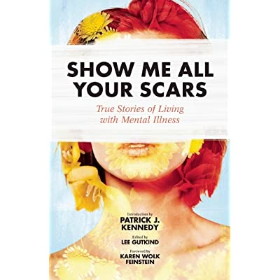Show Me All Your Scars: True Stories of Living with Mental ...