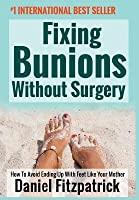 Fixing Bunions Without Surgery: How to Avoid Ending Up with Feet Like Your Mother
