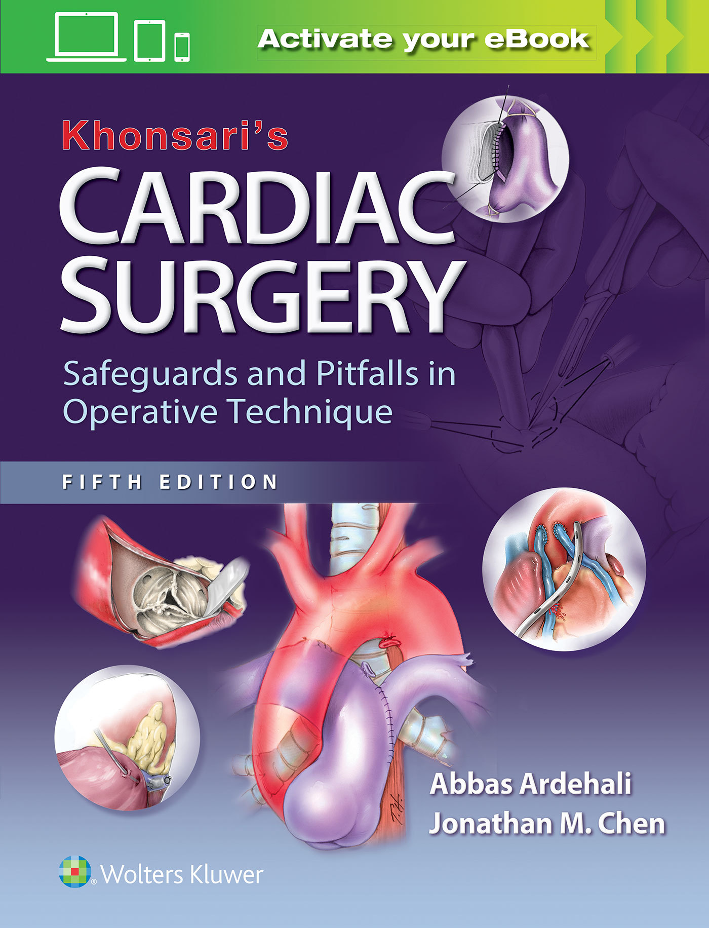 Khonsari's Cardiac Surgery- Safeguards and Pitfalls in Operative Technique