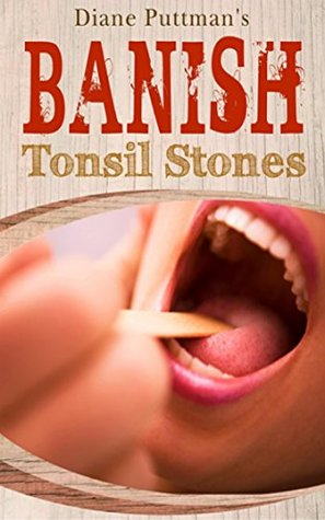 Banish Tonsil Stones - It's a Step-By-Step guide that will take you by the hand and show you the exact steps you need to permanently eliminate your tonsil stones forev