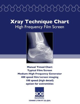 Xray Technique Chart High Frequency Film Screen