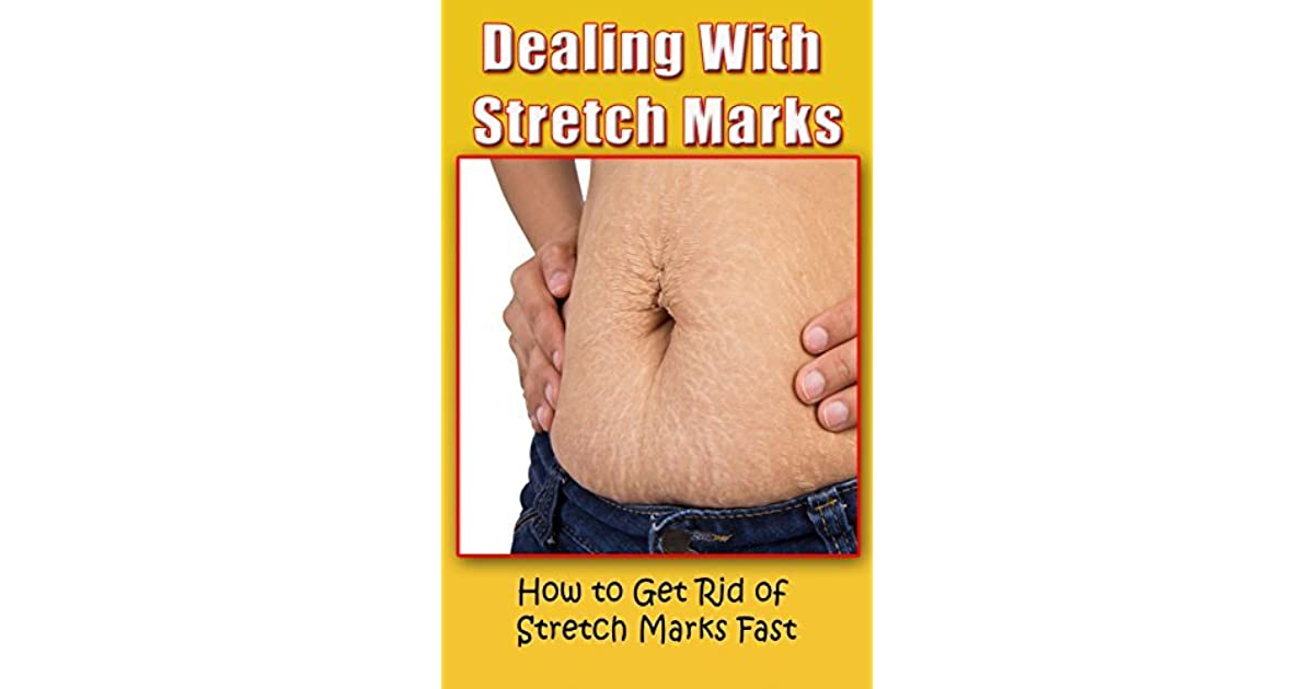 Dealing With Stretch Marks: How to Get Rid of Stretch Marks