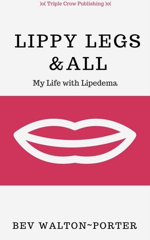 Lippy Legs All: My Life with Lipedema by Bev Walton-Porter