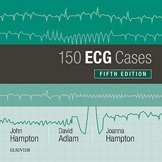 150 ECG Cases (150 ECG Problems)